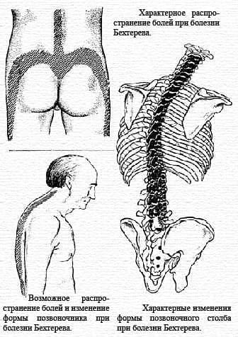 Болезнь Бехтерева - лечение