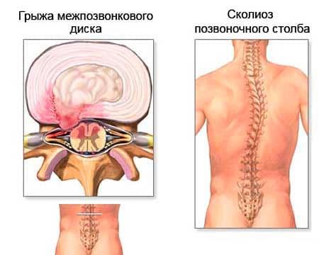 Изображение - Лечение боли в спине и суставах boli-v-spine-5