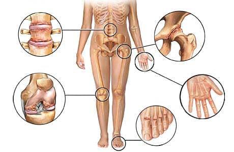 Первичный полиостеоартроз узелкового типа - SustavyBol