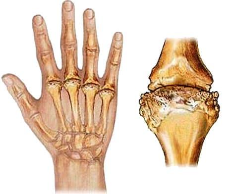 Лечение ревматоидного артрита в Санкт-Петербурге | Клиника ...