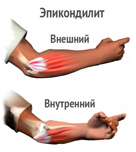 лечение бурсита локтевого сустава