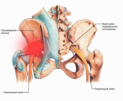 удалянчи лечение синдрома грушевидной мышцы