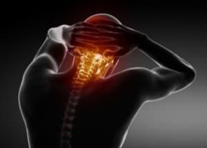 Невралгия затылочного нерва
