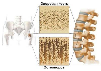 Остеопороз как причина болей в спине