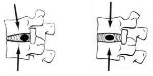 Строение позвоночника и его отделы