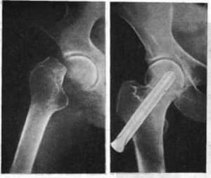 Что такое консолидированный перелом