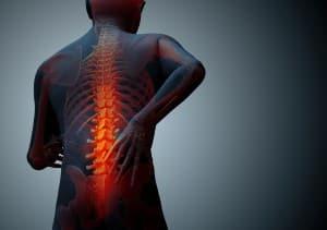 Изменения в позвоночнике и симптомы при болезни Бехтерева
