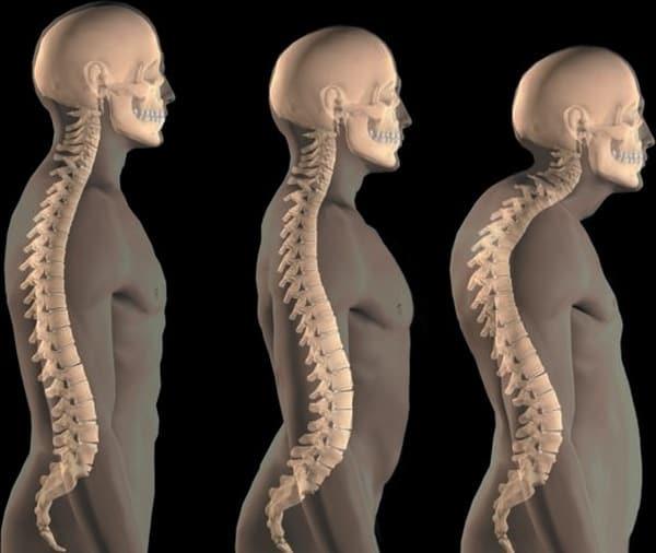 Почему растет горб на спине и как его убрать