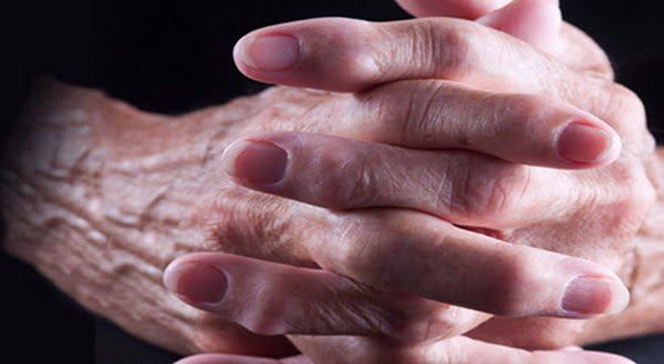 какой врач лечит артроз кистей рук самое запретное