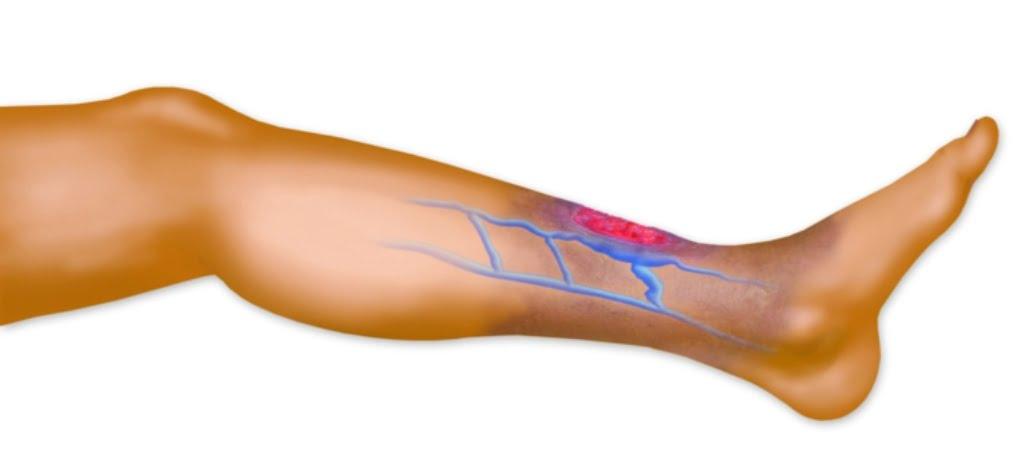 Облитерирующий эндартериит нижних конечностей - лечение в клинике доктора Куликовича    Облитерирующий эндартериит клиника